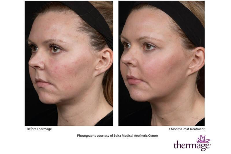 Thermage Treatments   Zen Lifestyle Beauty Salon Edinburgh
