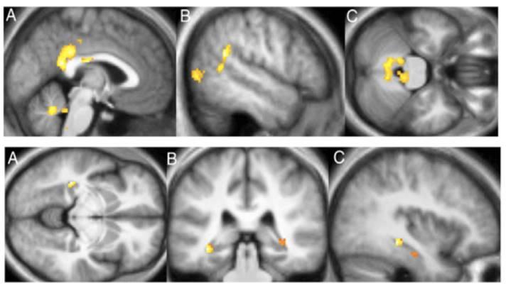 Graue Substanz Gehirn