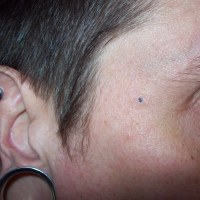 Self Dermal Anchor Removal..
