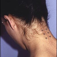Triple Nape Surface Piercing