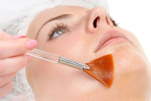 Chemical Peel Services at Zen Skincare Waxing Studio in Asheville, NC.