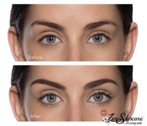 Luscious Lash Lift Eyelash Service Zen Skincare Asheville NC