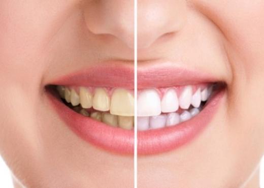 Cilat janë efektet anësore të zbardhjes së dhëmbëve