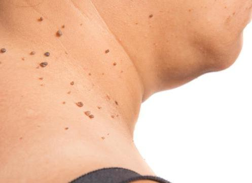 How To Get Rid Of Skin Tags 10 Easy Natural Painless Ways