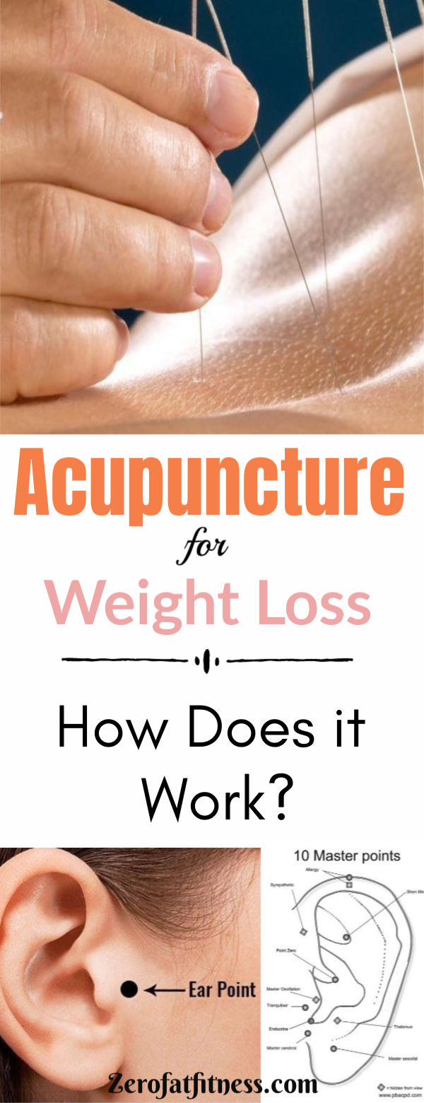 Acupuncture for Weight Loss - How Does it Work?