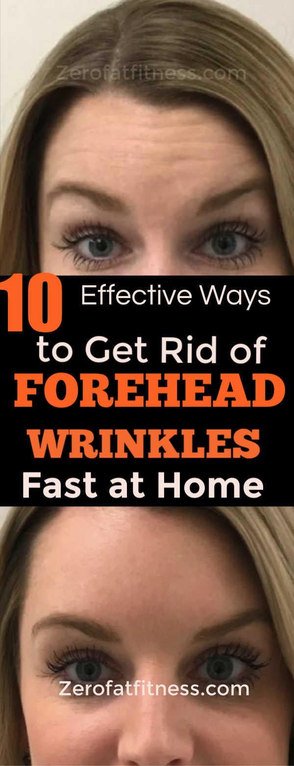 How to Get Rid of Forehead Wrinkles Naturally Fast with Home Remedies