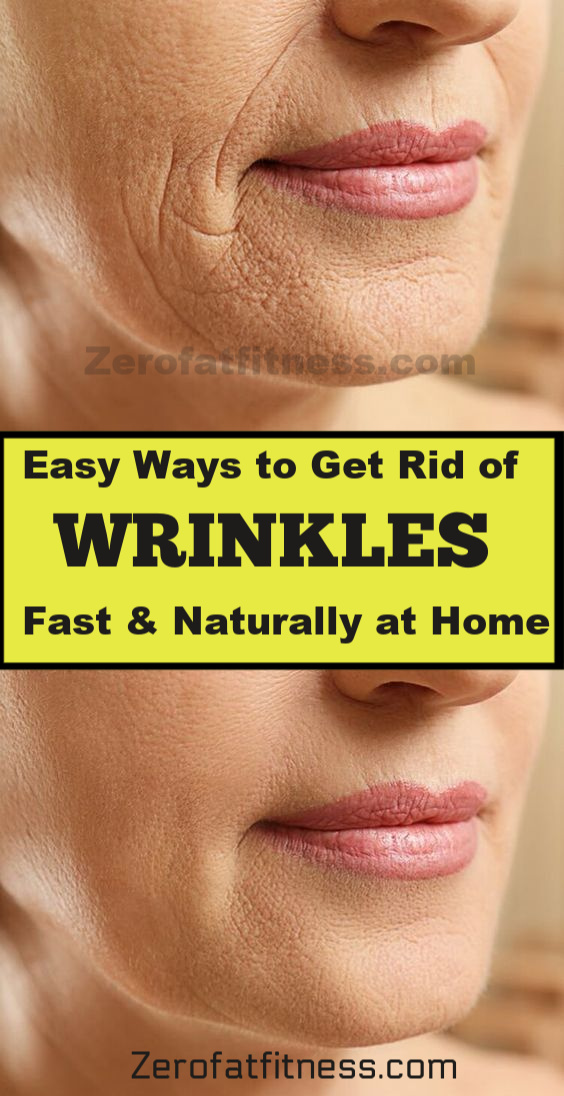 How to Get Rid of Wrinkles fast at home. Remove wrinkles on your forehead, around mouth & lips and under your eyes.