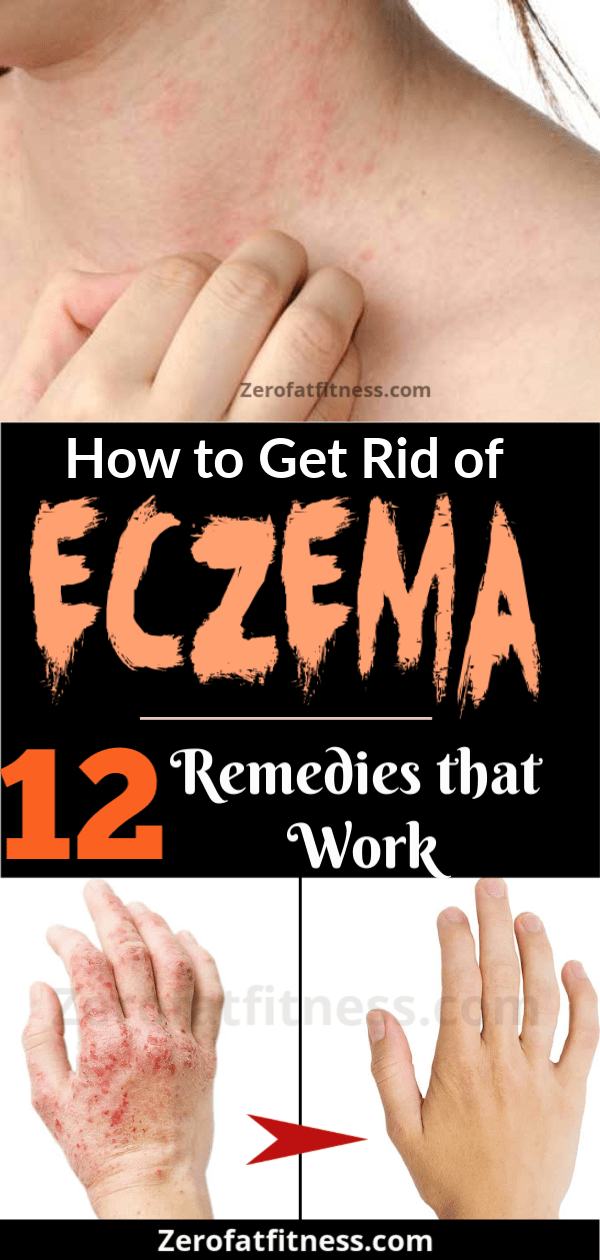 12 Best Home Remedies to Get Rid of Eczema Fast and Permanently