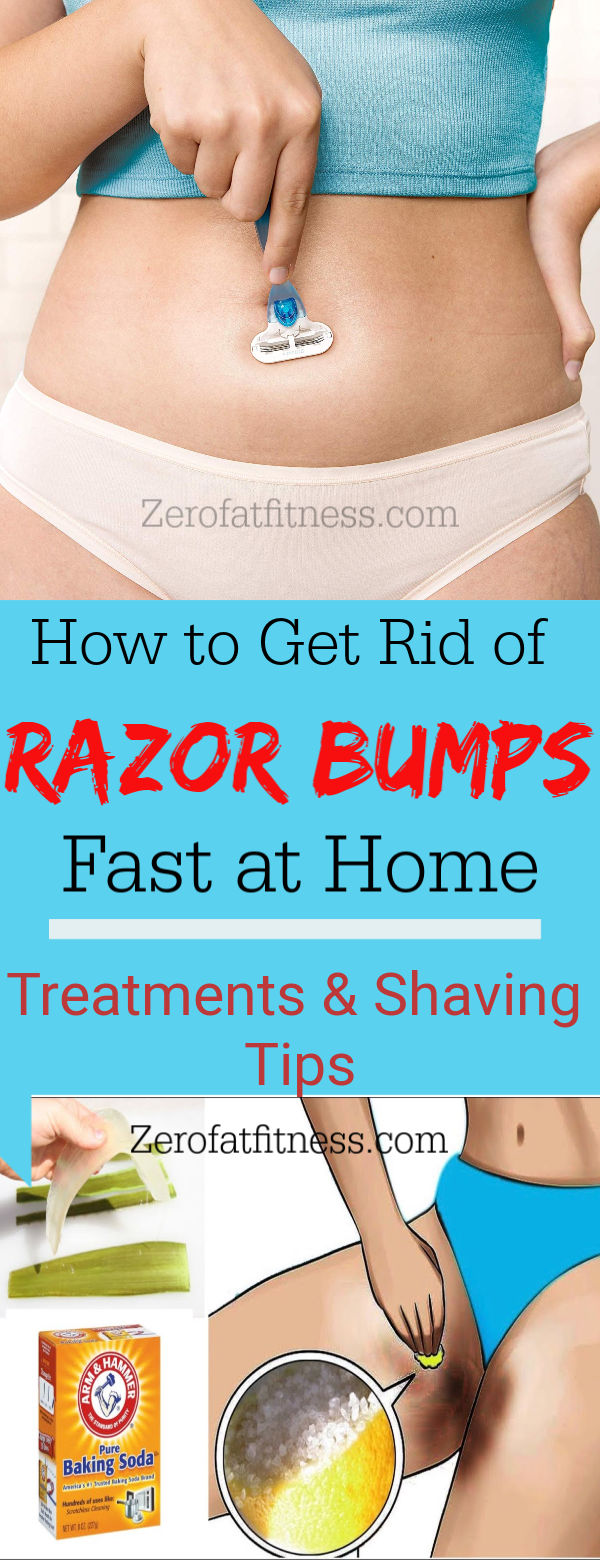 How to Get Rid of Razor Bumps on Vag and in a Bikini Area- Best home remedies, symptoms, prevention and causes of razor bumps