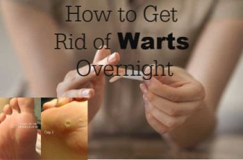 How to Get Rid of Warts Overnight: 6 Best Home Remedies for Warts