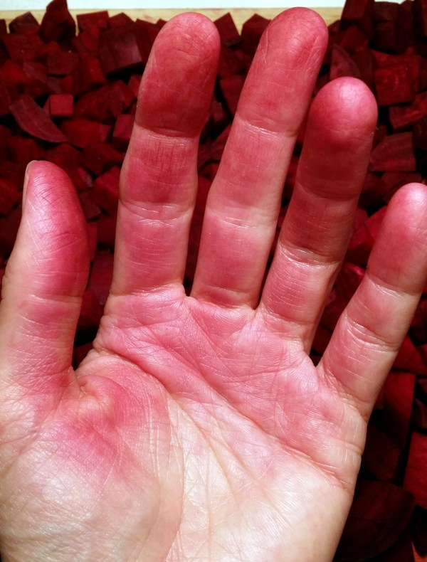 stained beet hands