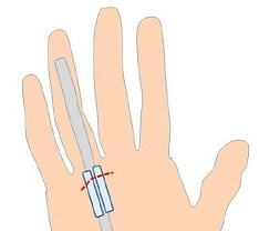 trigger_finger Εκτινασσόμενος δάκτυλος Εκτινασσόμενος δάκτυλος trigger finger
