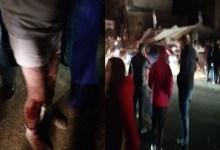 Photo of Foto/ Të plagosur dhe dëme të konsiderueshme nga tërmeti në Durrës