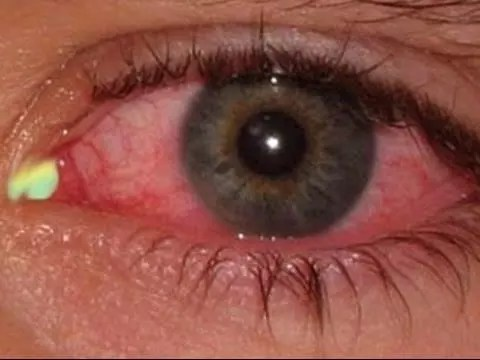 10 Best Eye Infection Home Remedies That Work! 1