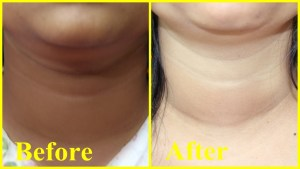 home remedies for darkneck