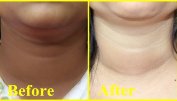 4 Home Remedies For Dark Neck