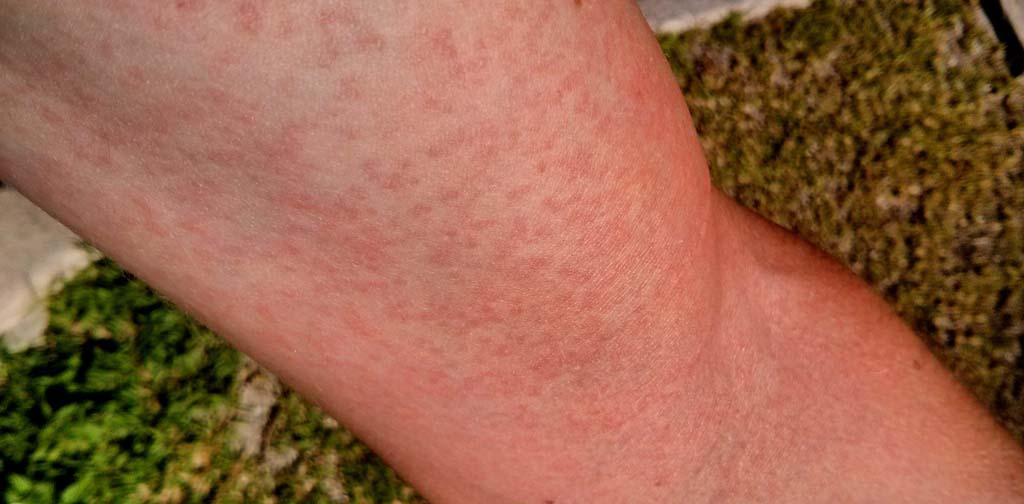 Image result for Zika fever