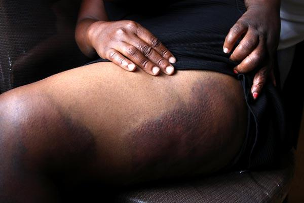 Soldiers raped us :Three Women