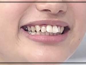 銀歯,写真