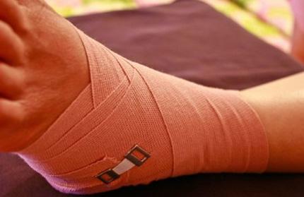 Как выглядит фурункул на ноге. Как лечить чирей на коленке у ребенка
