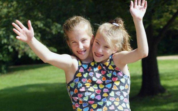 Жизнь на двоих: как выглядят сиамские близняшки в 28 лет