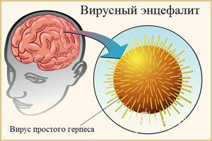 Ήττα με ιογενή εγκεφαλίτιδα