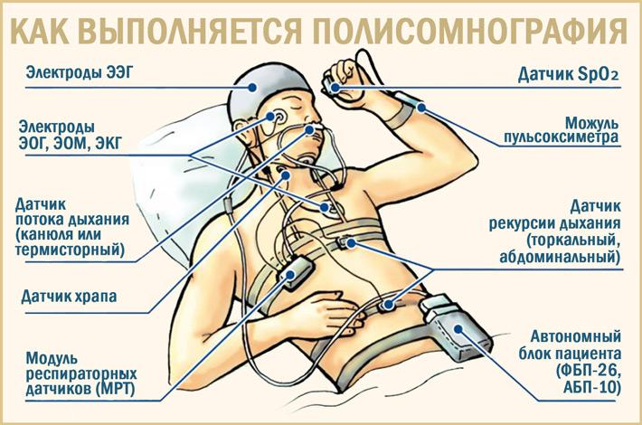 polysomnography คืออะไร