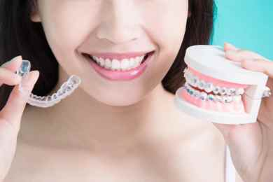 Say Cheese: What Are the Different Kinds of Braces?