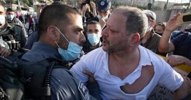 """ראיון עם ח""""כ עופר כסיף לאחר תקיפתו בידי שוטרים: על הבחירות וחיזוק השותפות היהודית-ערבית"""