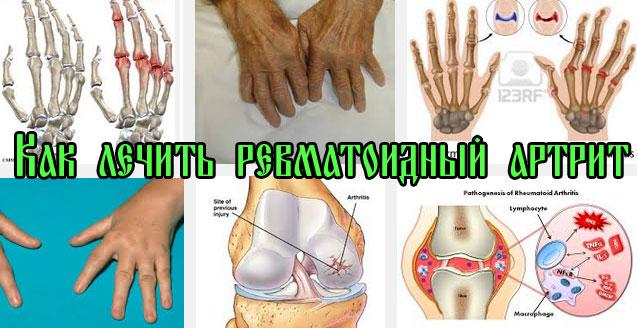Как лечить ревматоидный артрит рук | Лечение в Домашних Условиях