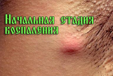 Начальная стадия воспаления
