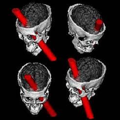 Herida cerebral Gage