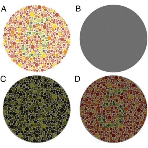 Ishihara_colour_blindess_test_example