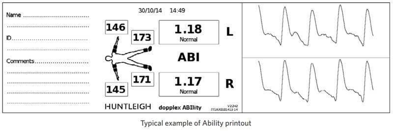 Huntleigh ABI Ability Printout Example