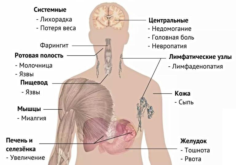 A betegségben szenvedő betegség jelei a férfiakban mri chronic prostatitis