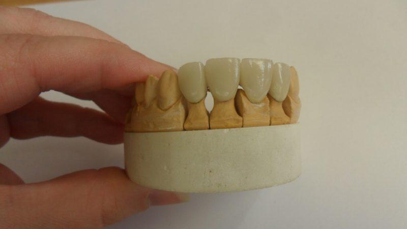 szkoła, Płock, lekcje, zajęcia, proteza, ząb