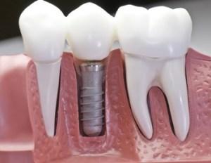 protezy stałe, protezy częściowe, protezy ruchome, ząb, ząb z wkrętką, pokaz w dziąśle, Płock, Zgierz, szkoła