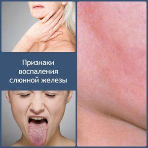 Что такое паротит или воспаление околоушной железы? Где находится слюнная железа околоушная? Воспаление околоушной слюнной железы: причины, симптомы, лечение