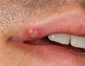 Болячка на внутренней стороне губы у ребенка