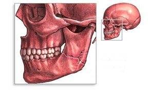 Az alsó állkapocs szöge megnyomódik - Diagnosztika February