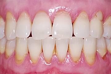 Может ли от зубных протезов болеть горло. Почему болит горло и зубы? Может ли больной зуб отдавать в ухо и горло? терапевт увидела налет в горле, леденцы выписала, а боль в горле не проходит