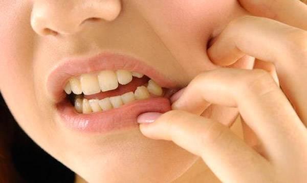 Как вытащить временную пломбу в домашних условиях. Как вытащить временную пломбу и удалить мышьяк из зуба самостоятельно в домашних условиях