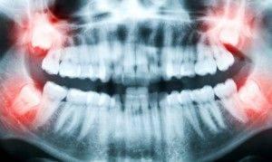Болит зуб мудрости на верхней челюсти слева