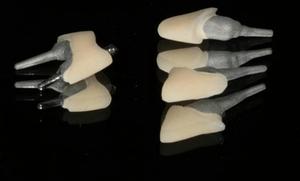 Штифт и имплант в чем разница