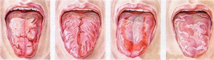 Десквамативный глоссит лечение. Методы диагностики болезни. Лечение десквамативного глоссита