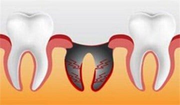 White at the site of tooth extraction  Symptoms that