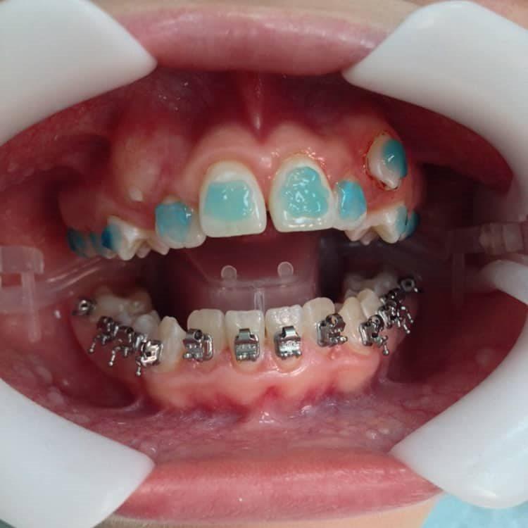 Сколько стоят брекеты на зубы: цены для подростков и взрослых