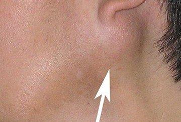 Симптомы слюннокаменной болезни сиалолитиаза и лечение железы посредством удаления камней