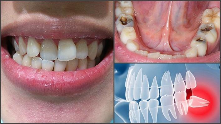 Что делать когда болит зуб мудрости Узнам как снять неприятные ощущения