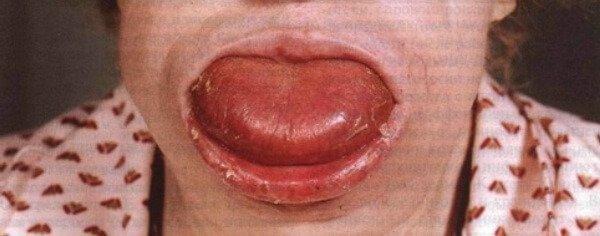 Макроглоссия (увеличенный язык): этиология и методы терапии. Особенности макроглоссии у детей и взрослых, а также какими методами лечат патологию